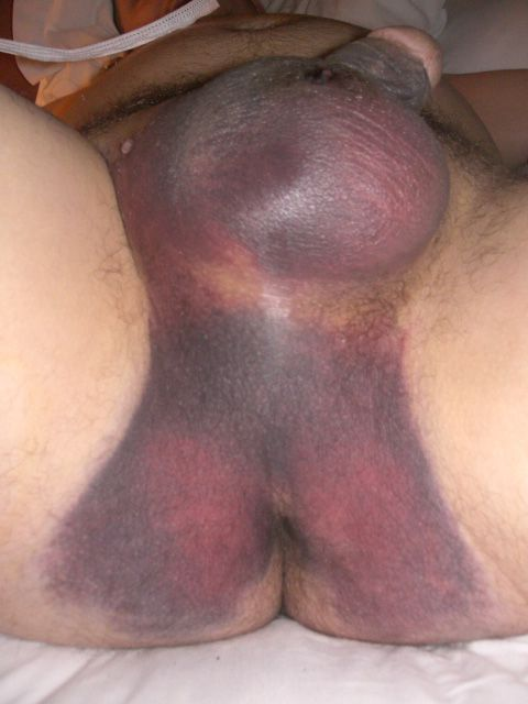 What necessary Bruised penis after sex with virgin sorry, this