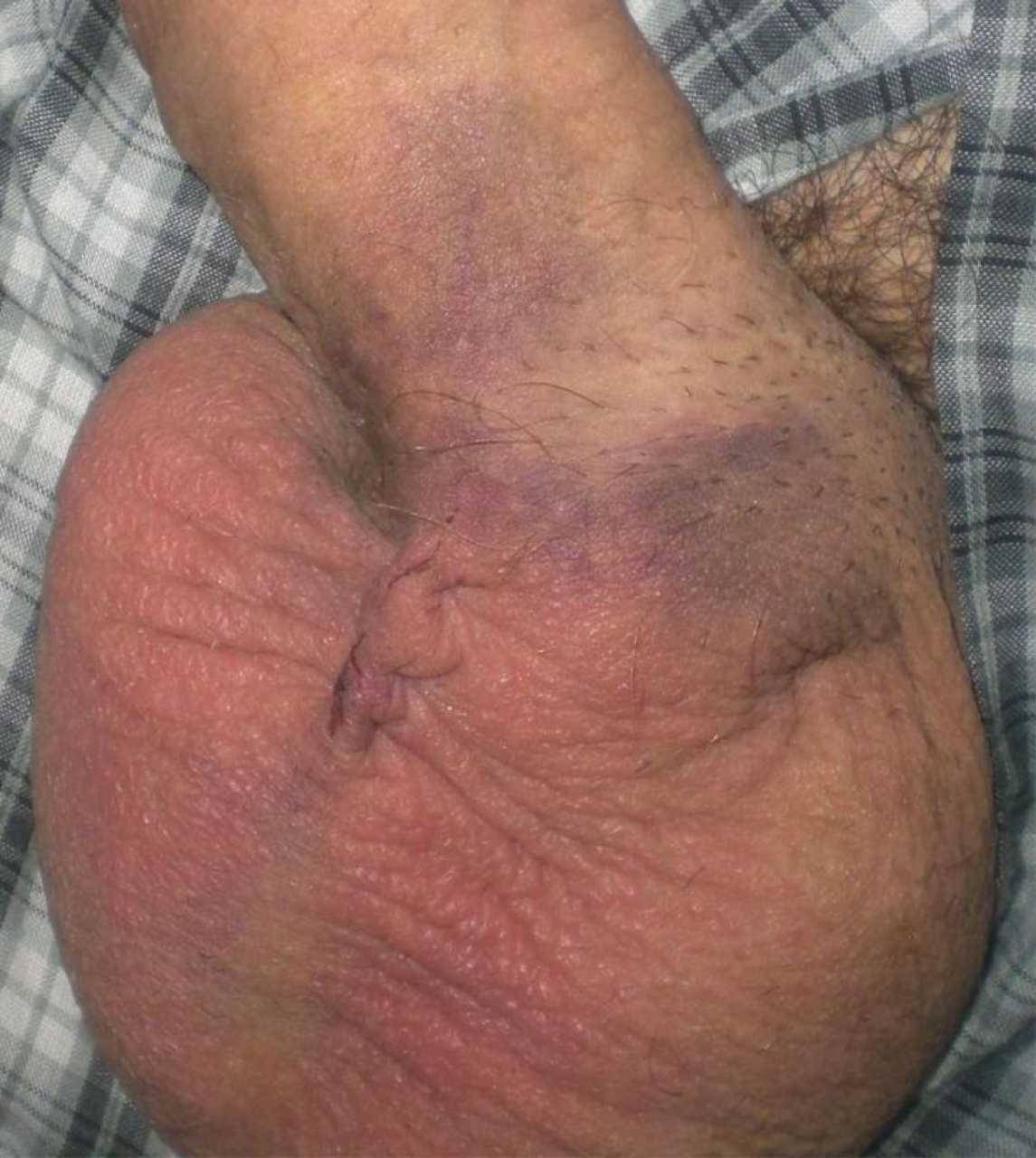 After orgasm my balls itch were mistaken