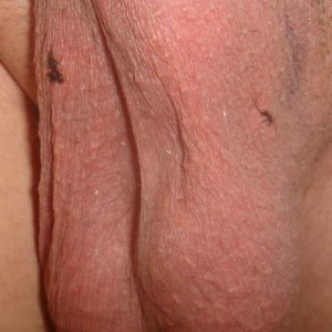 Bilateral vasectomy site. Very slight bruise developing above the left incision. (Day 3)